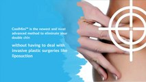 CoolMini™ – CoolSculpting® for Double Chins - CoolSculpting Toronto Clinic