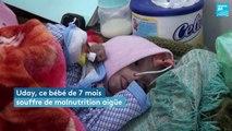 Yémen : la famine frappe les bébés