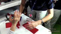 Riabilitazione della mano: tutore funzionale da Medicina e Informazione