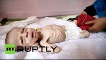 Yémen : des enfants menacés de malnutrition alors que le conflit continue (images choc)