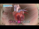 [Happyday] myocardial infarction is their hands and feet to rot  [기분 좋은 날] 20160113