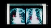 Marvels VENOM (2018) Full Trailer #1 Tom Hardy Marvel Movie