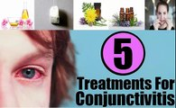 Pink Eye Treatment|Home Remedies to Get Rid from Pink Eyes Naturaly
