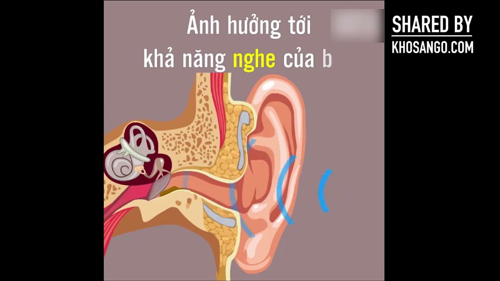 Bạn có dùng bông ngoáy tai hàng ngày Hãy xem video để biết tác hại việc đó.