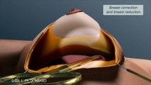 ptose-mammaire-les-seins-qui-tombent-explications-animation-3d-c-dr-dombard