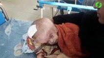 Ce bébé souffre d'une maladie rare qui lui déforme la boite crânienne