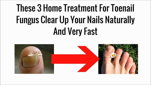 These 3 Home Treatment For Toenail Fungus Clear Up Your Nails ...