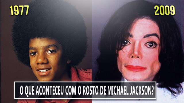 MIchael Jackson Antes e depois  - Michael Jackson Before and after