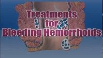 Bleeding Hemorrhoids Treatment - How To Stop Bleeding Hemorrhoids || Treating Hemorrhoids At Home | Hemorrhoid Treatment