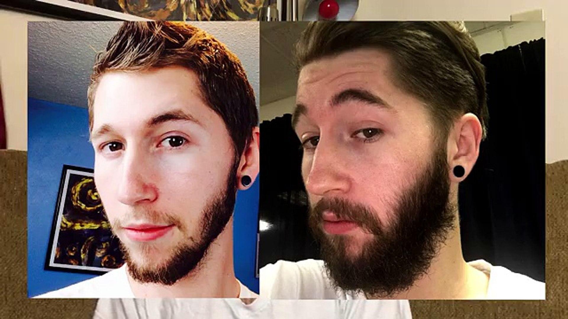 Minoxidil Beard - MONTH 7 - The Experiment