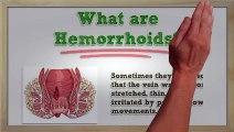 Hemorrhoids Symptoms - Hemorrhoids Symptoms and Treatment - Hemorrhoids Symptoms Itching | Hemorrhoid Treatment