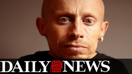 Verne Troyer, Mini-Me in 'Austin Powers,' dead at 49
