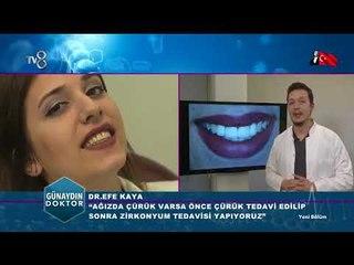 Dişte Zirkonyum tedavisi |  Dr. Efe KAYA
