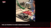 Voici les poumons d'un individu qui a fumé 20 cigarettes par jour pendant 20 ans (Vidéo choc)