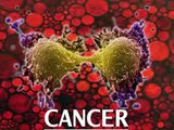 Estos son los primeros síntomas de cáncer que muchos ignoran