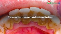 How are Dental Caries Formed? What Causes Dental Caries and Tooth Decay