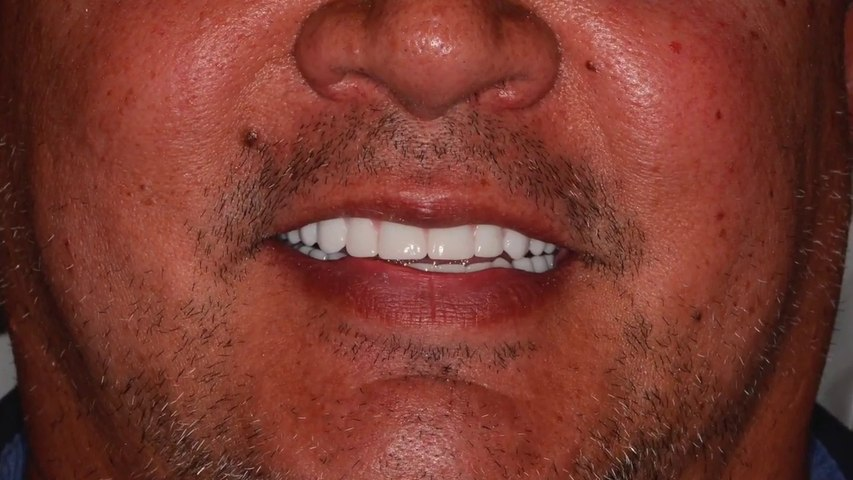 Same Day Dentures
