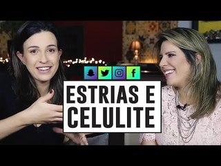 DICAS para TRATAR E PREVENIR de ESTRIAS e CELULITE com Dra Cintia Cunha