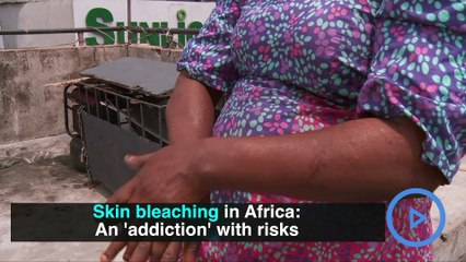 Skin bleaching in Africa: An 'addiction' with risks