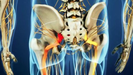 Awesome Home Remedies To Get Rid of Sciatic Nerve Pain Fast!