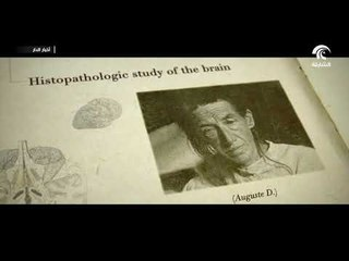 الزهايمر واحد من أخطر الأمراض التي تصيب الذاكرة لدى الإنسان