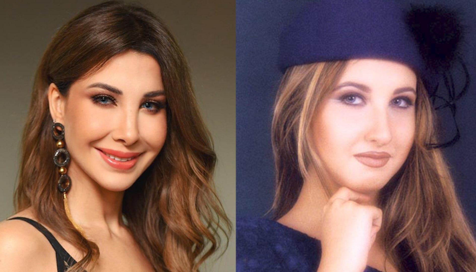 الن جمات العربي ات قبل وبعد عملي ة تحديد الفك وشد الذ قن فيديو Dailymotion