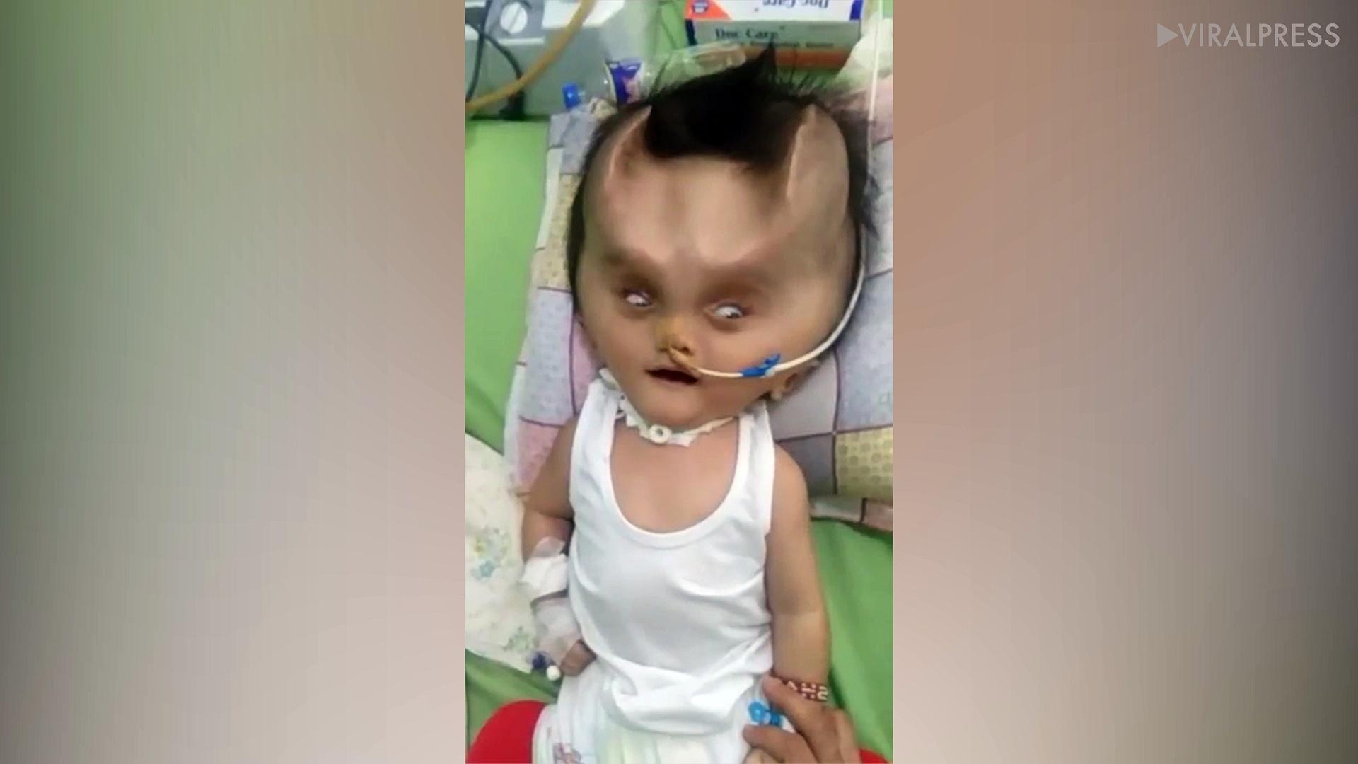 Filipino Toddler Has Devil Horns