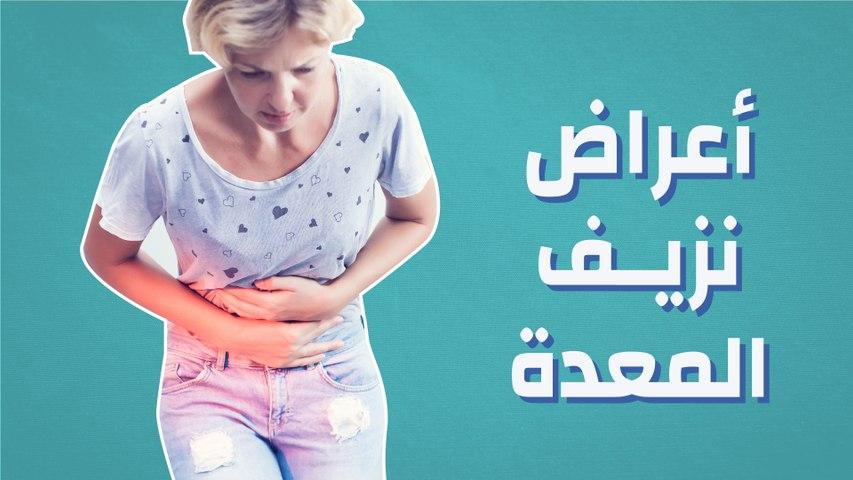 أعراض نزيف المعدة