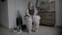 Lymphedema Warrior Embraces Her Pear Shape | SHAKE MY BEAUTY
