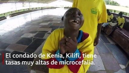 El refugio que recibe a decenas de niños con microcefalia