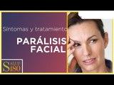 Síntomas de parálisis facial | Salud180