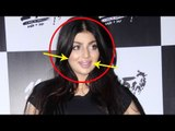 Ayesha Takia is UNRECOGNISABLE after horrible PLASTIC SURGERY!