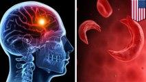 Penemuan baru beri pencerahan mengenai Penyakit Sel Sabit - TomoNews