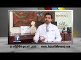 ¿Cuándo es necesaria una cirugía para el tratamiento de la hiperplasia prostática?