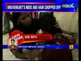34-year-old man allegedly chops off wife's hair, nose for dowry
