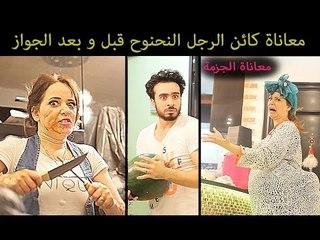 Mohamed Aamer  - ( معاناة الرجل النحنوح قبل وبعد الجواز ( الجزمة