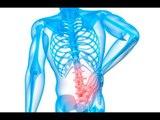 صدى البلد | تعرف على أعراض الإنزلاق الغضروفي.. واحذر من العلاجات الوهمية