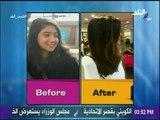 تقصف الشعر وطرق علاجه بالبلاسنتا - د.منه زاهر   طبيب البلد
