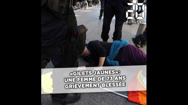 «Gilets jaunes» à Nice: Une femme de 73 ans grièvement blessée lors d'une charge de CRS