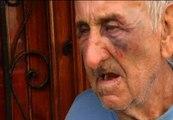 Anciano apaleado por dos ladrones en su propio domicilio