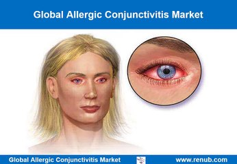 Global Allergic Conjunctivitis Market Outlook