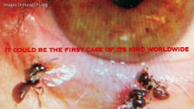 Eye'll bee damned: Taiwanese woman finds insects in eye