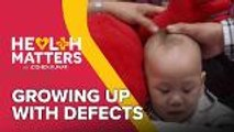Health Matters: Growing Up With Defects