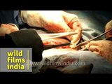 Cesarean Section (C-Section) Delivery - video dailymotion