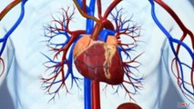 Angioplasty_-_Medical_animation
