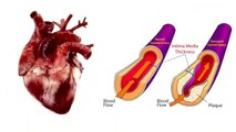 Know_about_Heart_Blockeges___Heart_Attack_in_simplest_way.