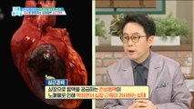 [HEALTH] Squeak like pain, threat of life! 'Myocardial infarction',기분 좋은 날20190513