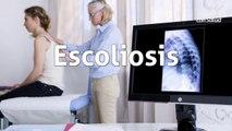 ¿Qué es la escoliosis y qué la causa?