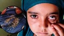 12 साल की बच्ची की आंखों से हर दिन निकलते है 20 ग्राम नुकीले तिनके