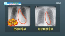 [HEALTH] Is your heart fat too? The substance of fat heart and fatty liver,기분 좋은 날20190610